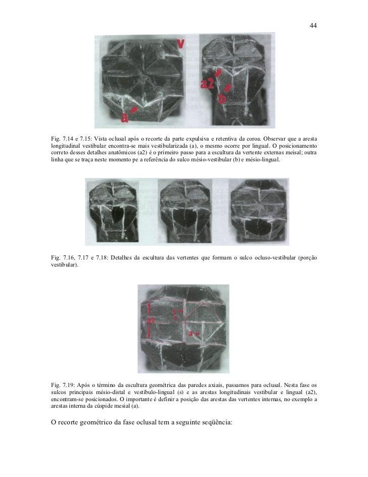 44Fig. 7.14 e 7.15: Vista oclusal após o recorte da parte expulsiva e retentiva da coroa. Observar que a arestalongitudina...