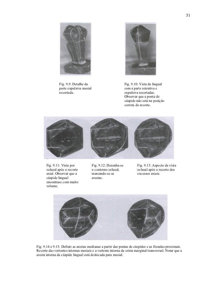 51                Fig. 9.9: Detalhe da                             Fig. 9.10: Vista da lingual                parte expuls...