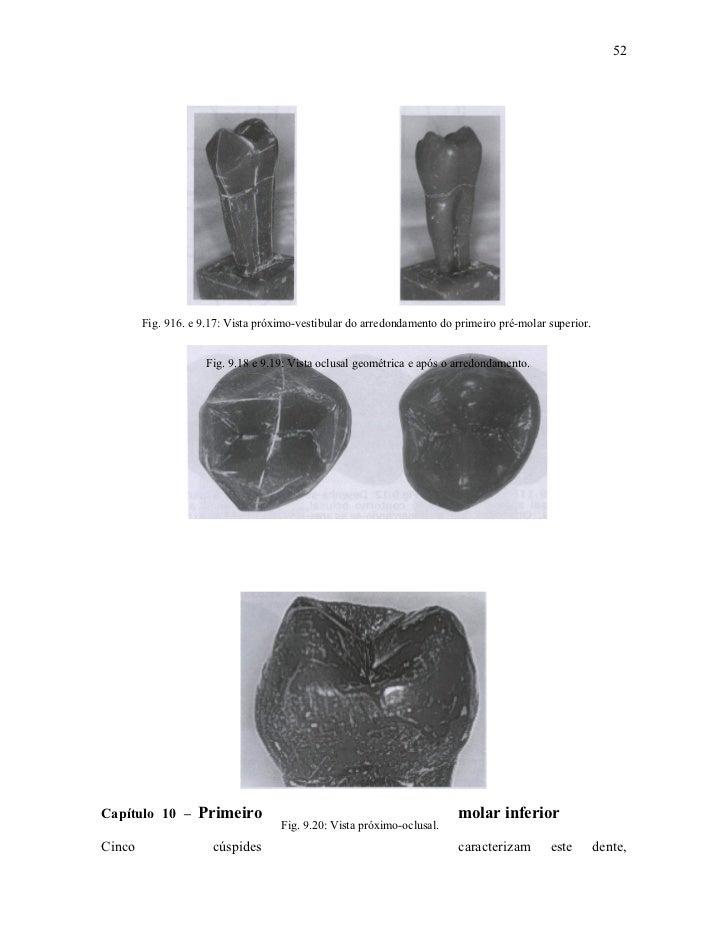 52        Fig. 916. e 9.17: Vista próximo-vestibular do arredondamento do primeiro pré-molar superior.                    ...