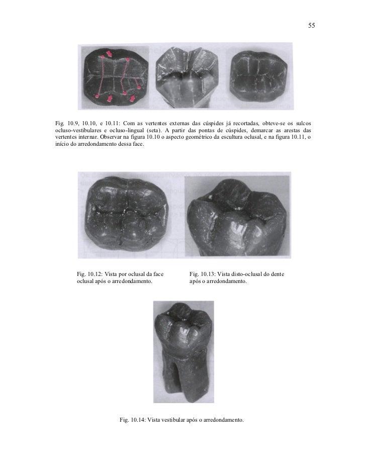 55Fig. 10.9, 10.10, e 10.11: Com as vertentes externas das cúspides já recortadas, obteve-se os sulcosocluso-vestibulares ...