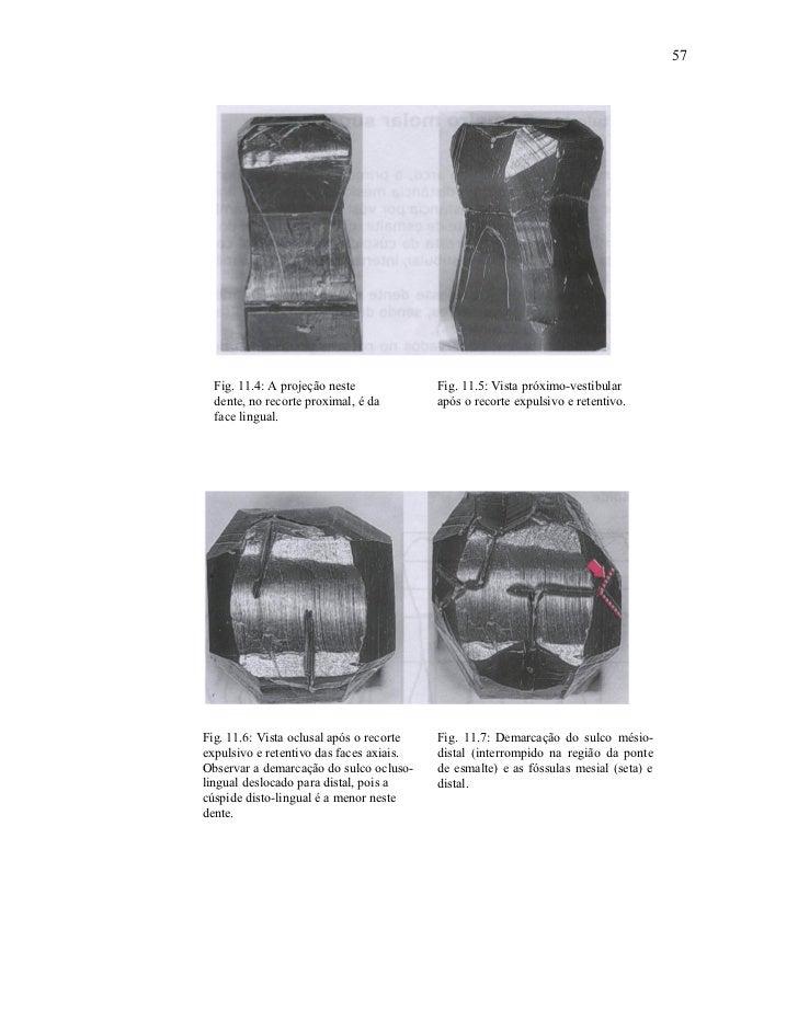 57  Fig. 11.4: A projeção neste             Fig. 11.5: Vista próximo-vestibular  dente, no recorte proximal, é da        a...