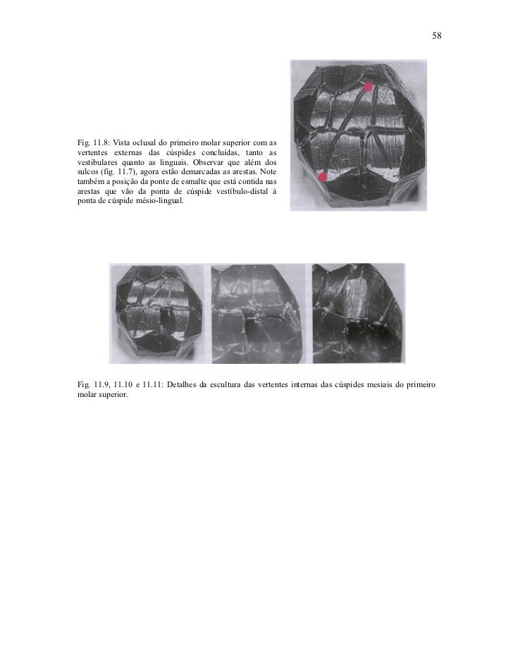 58Fig. 11.8: Vista oclusal do primeiro molar superior com asvertentes externas das cúspides concluídas, tanto asvestibular...