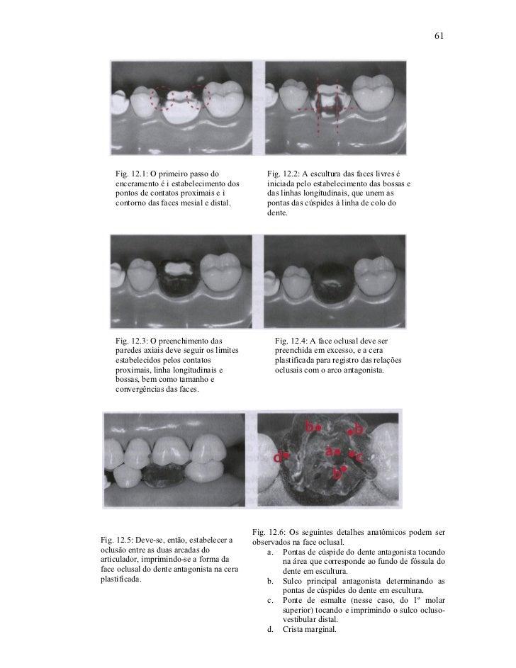 61    Fig. 12.1: O primeiro passo do              Fig. 12.2: A escultura das faces livres é    enceramento é i estabelecim...
