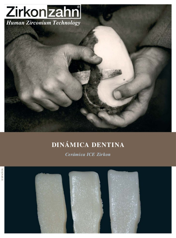 DINÁMICA DENTINA             Cerámica ICE ZirkonESPA ÑOL