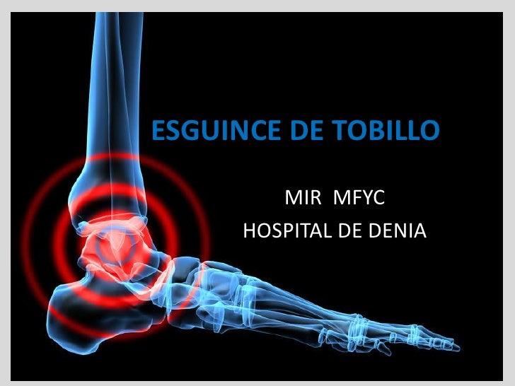 ESGUINCE DE TOBILLO          MIR MFYC      HOSPITAL DE DENIA