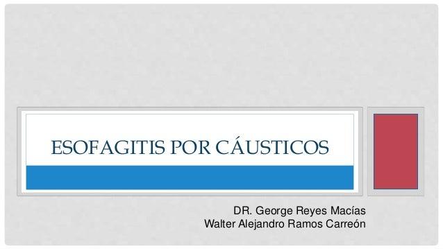 ESOFAGITIS POR CÁUSTICOS DR. George Reyes Macías Walter Alejandro Ramos Carreón