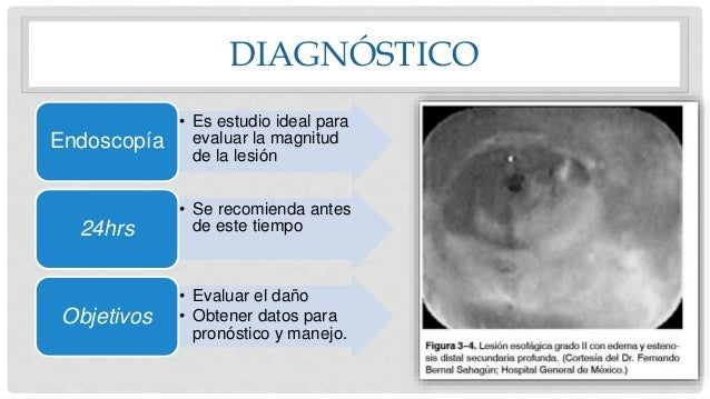 DIAGNÓSTICO • Es estudio ideal para evaluar la magnitud de la lesión Endoscopía • Se recomienda antes de este tiempo24hrs ...