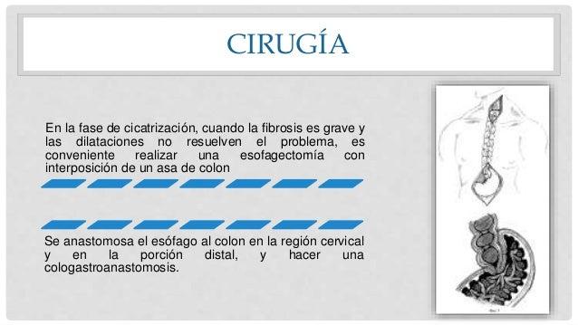 CIRUGÍA En la fase de cicatrización, cuando la fibrosis es grave y las dilataciones no resuelven el problema, es convenien...