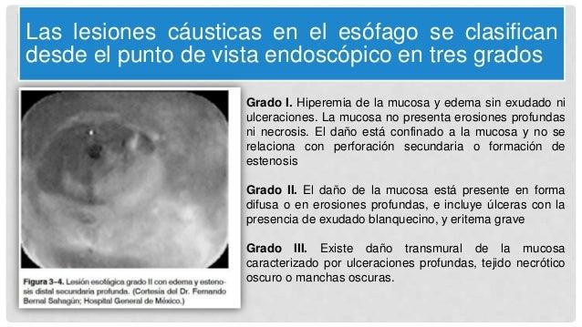 Las lesiones cáusticas en el esófago se clasifican desde el punto de vista endoscópico en tres grados Grado I. Hiperemia d...