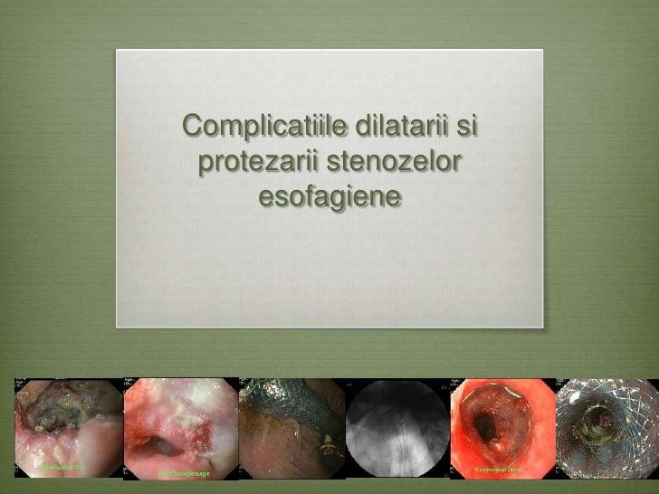 Complicatiile dilatarii si protezarii stenozelor      esofagiene