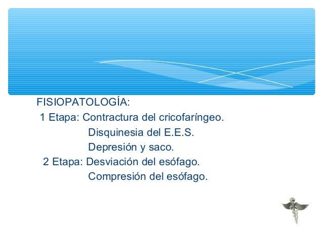 Espasmo esofagico difuso