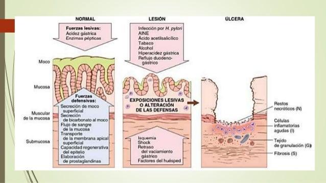 Esofago anatomia patologica de Robbins capitulo 14