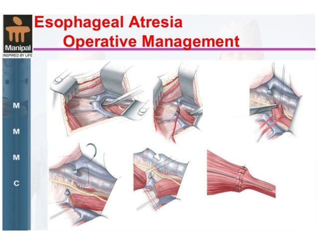 Esophageal Atresia Epitome Of Modern Surgery