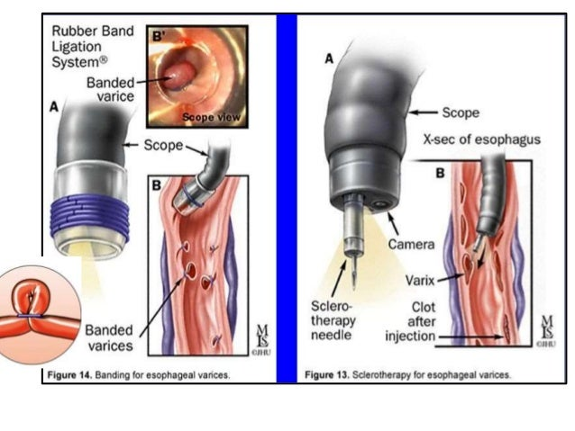 oesophageal varices Symptoms of esophageal varices including 4 medical symptoms and signs of esophageal varices, alternative diagnoses, misdiagnosis, and correct diagnosis for esophageal varices signs or.