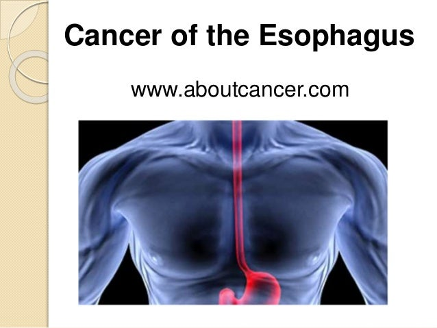 Esophagus cance...