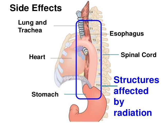 Diagram of esophagus in relation to heart complete wiring diagrams esophagus cancer radiation treatment rh slideshare net ccuart Images