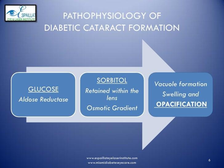 Eye Diseases; Cataracts, Glaucoma, Diabetes - Kingwood Family ...