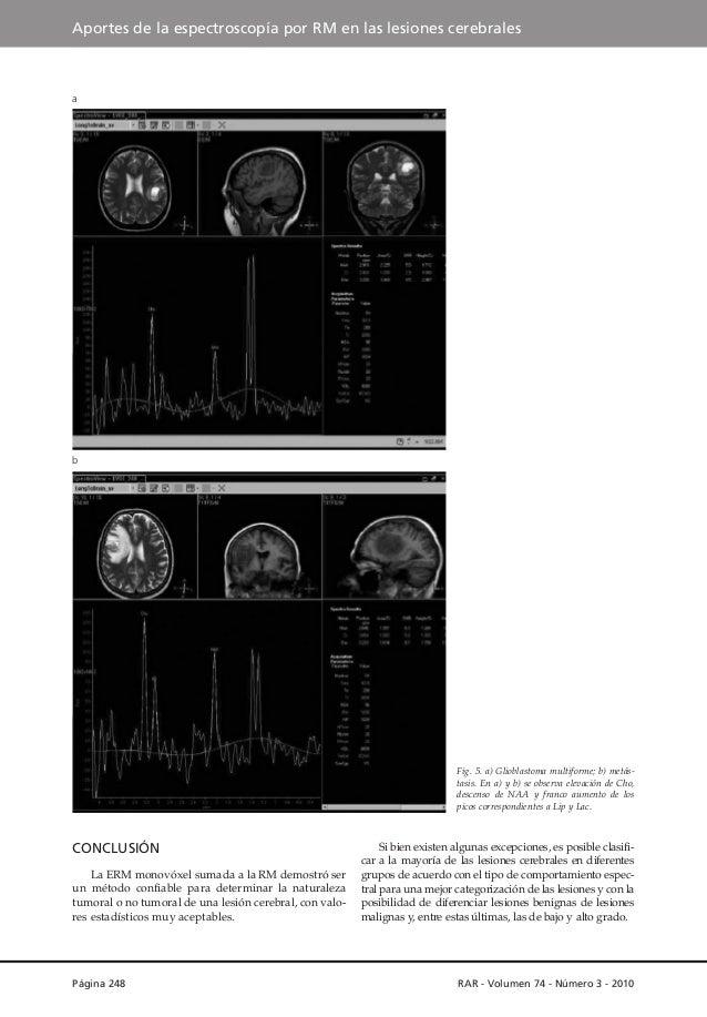 Aportes de la espectroscopía por RM en las lesiones cerebrales  a  b  Fig. 5. a) Glioblastoma multiforme; b) metástasis. E...