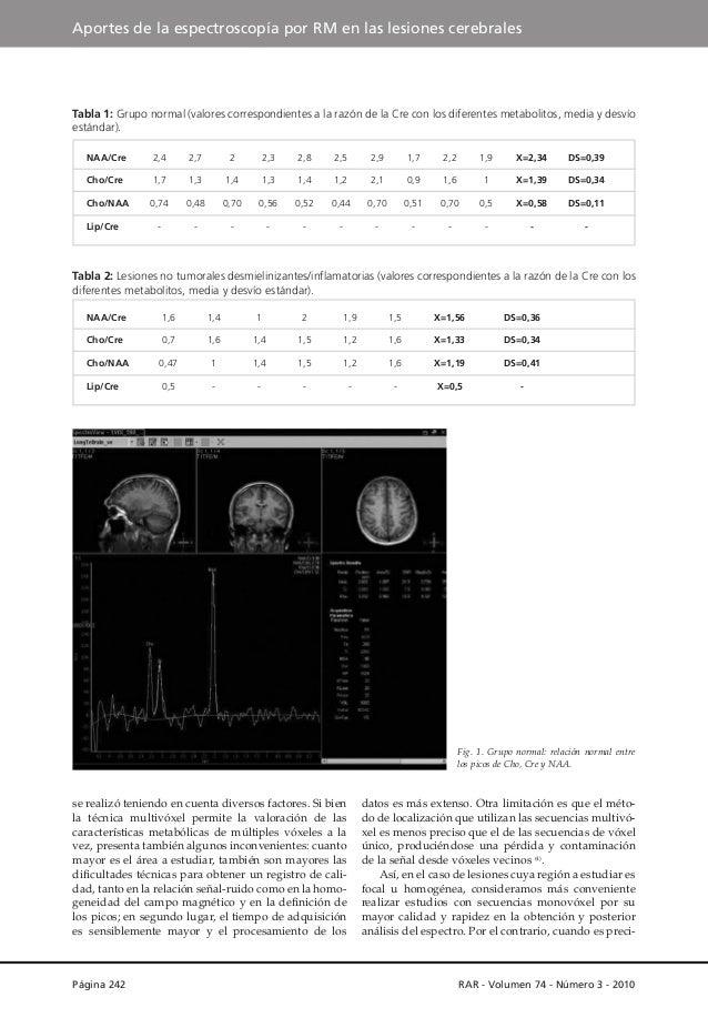 Aportes de la espectroscopía por RM en las lesiones cerebrales  Tabla 1: Grupo normal (valores correspondientes a la razón...