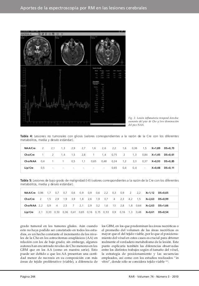 Aportes de la espectroscopía por RM en las lesiones cerebrales  Fig. 2. Lesión inflamatoria temporal derecha: aumento del ...
