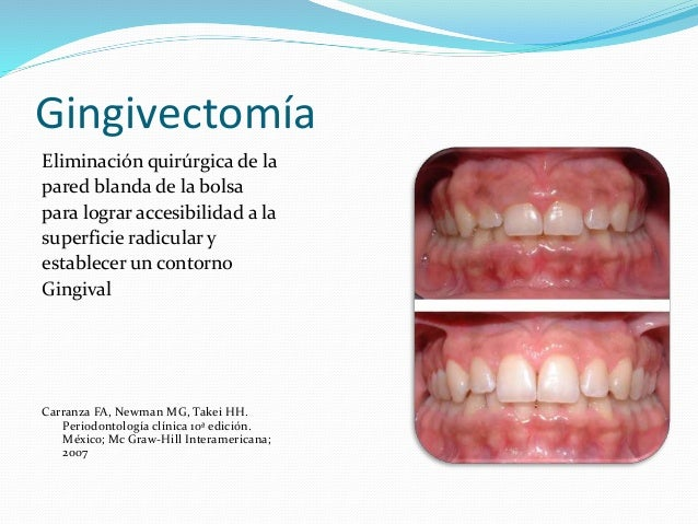 Periodontologia clinica carranza 10 edicion pdf printer