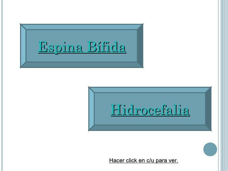 Espina Bífida Hidrocefalia Hacer click en c/u para ver.