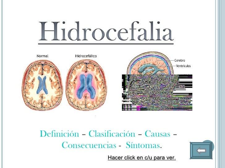 Espina bifida e hidrocefalia