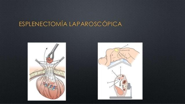 ESPLENECTOMÍA LAPAROSCÓPICA