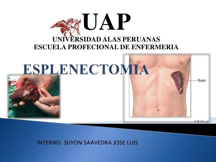 UAP<br />UNIVERSIDAD ALAS PERUANAS<br />ESCUELA PROFECIONAL DE ENFERMERIA<br />ESPLENECTOMIA<br />INTERNO: SUYON SAAVEDRA ...