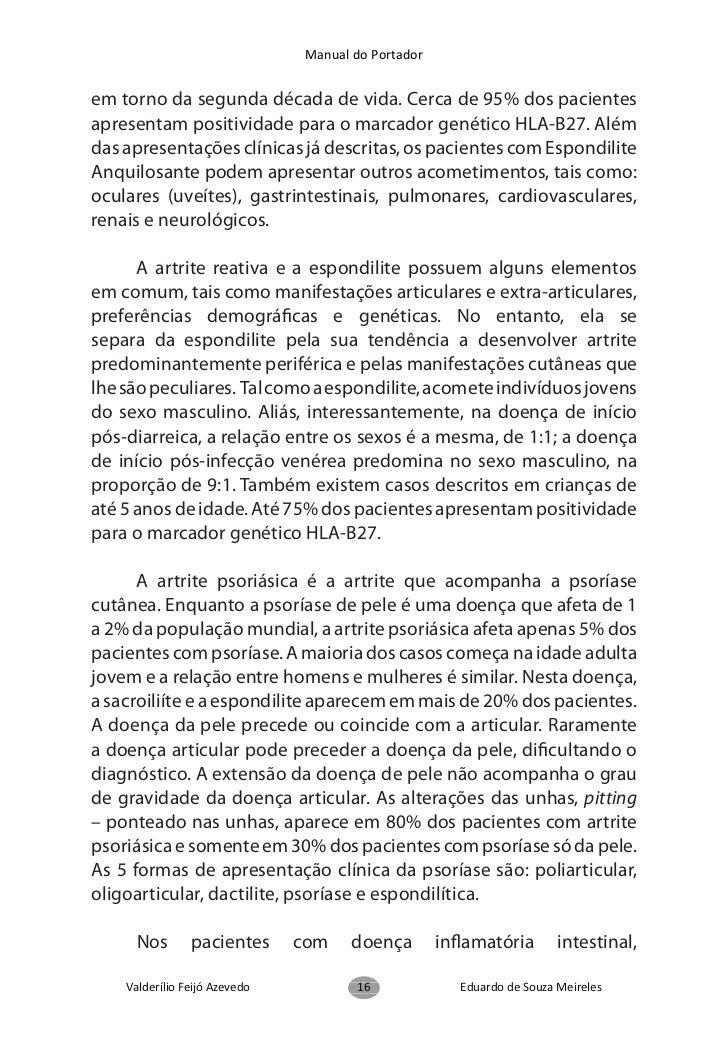 Manual do Portador     Clínica      Até o início dos anos 70, os portadores de EspondiliteAnquilosante eram abordados pelo...
