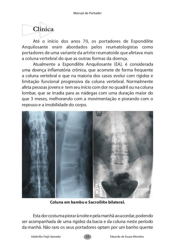 Manual do Portador      O acometimento articular periférico (braços e pernas) écaracterizado pela presença de oligoartrite...