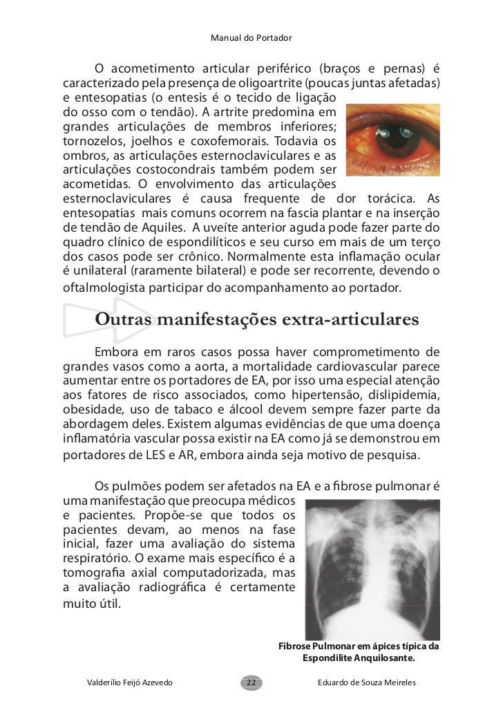 Manual do Portadoroutros profissionais da área de saúde. Programas de treinamentofísico são indicados para portadores em d...