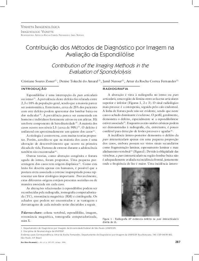 287Rev Bras Reumatol, v. 46, n.4, p. 287-291, jul/ago, 2006 Vinheta Imagenológica Imagenologic Vignette Responsáveis: Artu...
