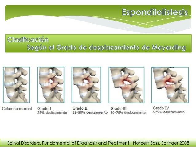 Definicion De Espondilolistesis Pdf