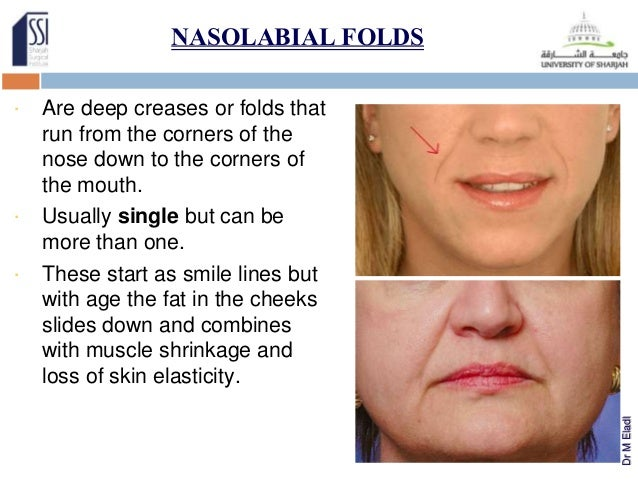 Effective? nasolabial fold facial