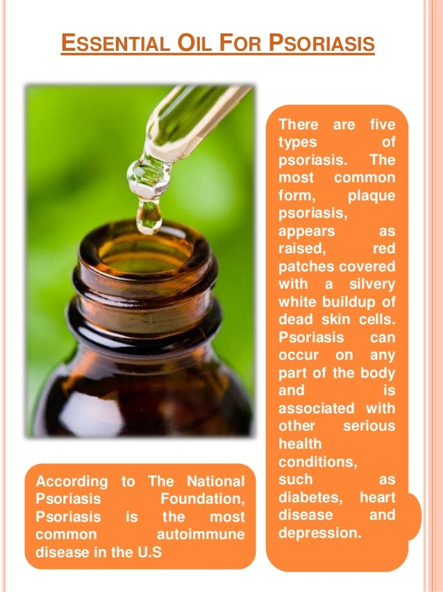 Essential Oil For Psoriasis Idas Ponderresearch Co