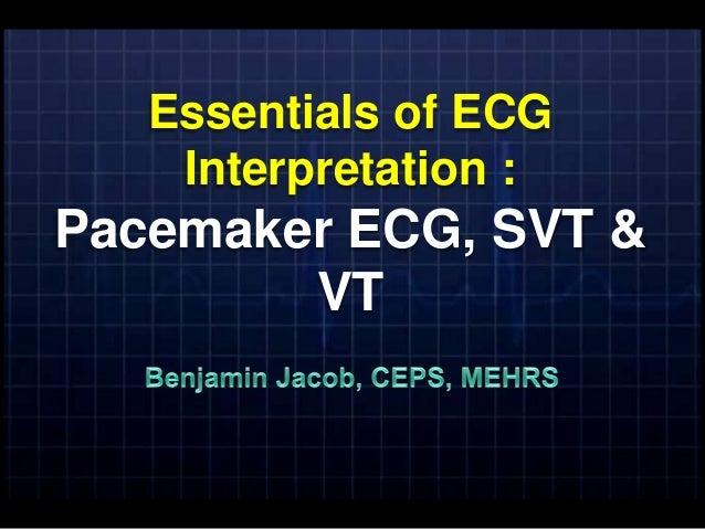 Essentials of ECG    Interpretation :Pacemaker ECG, SVT &        VT