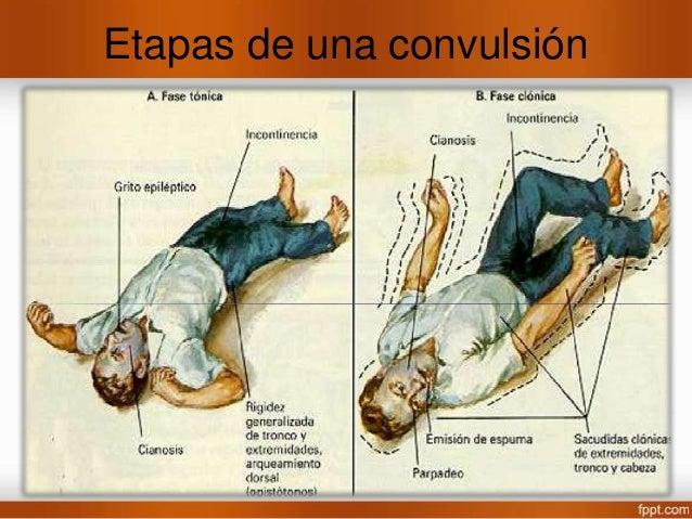 Convulsión Mioclónica • Contracción muscular breve de tipo choque eléctrico ya sea circunscrita a parte de una extremidad ...