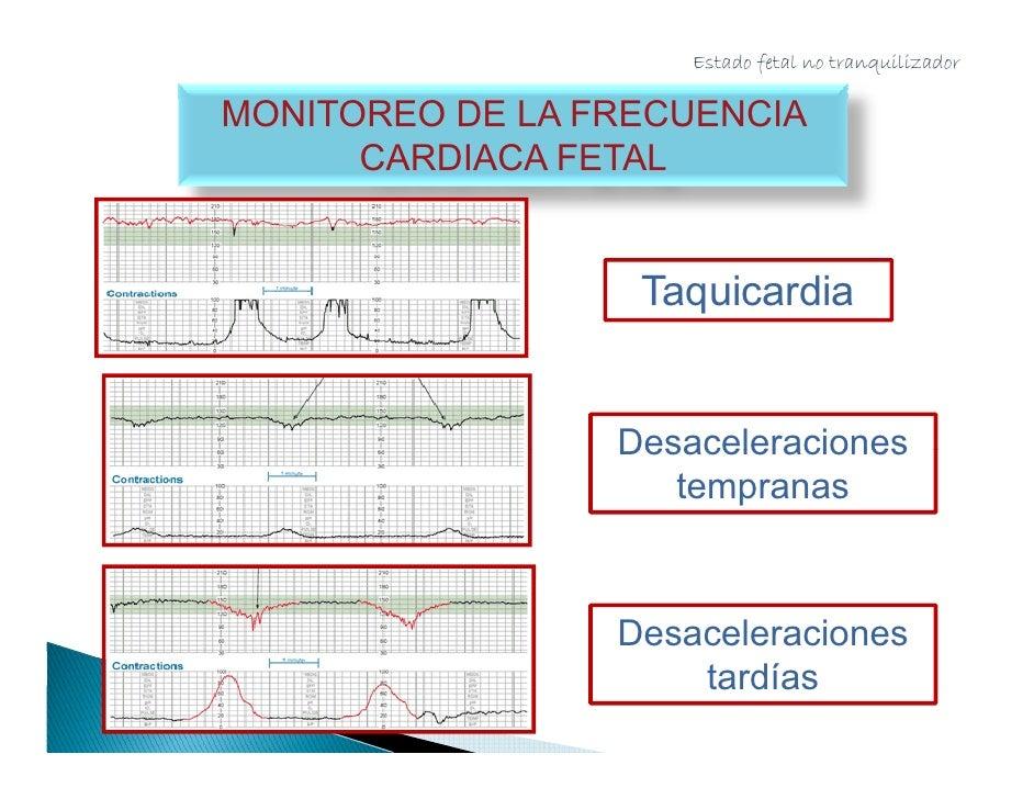 Estado fetal no tranquilizador      MONITOREO DE LA FRECUENCIA CARDIACA FETAL                  Desaceleraciones           ...