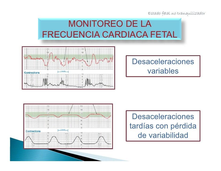 Estado fetal no tranquilizador              MONITOREO DE LA        FRECUENCIA CARDIACA FETAL      Lanzado en 1960 sin est...
