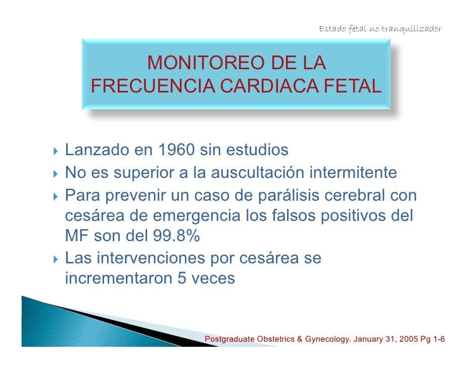 Estado fetal no tranquilizador                    LA REGLA DE LOS 30                       MINUTOS     Ligado al trazado ...
