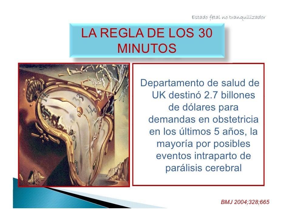 Estado fetal no tranquilizador     Am Journal Of P i A J      l    Perinat 2004;21:63-68                       2004 21 63 ...