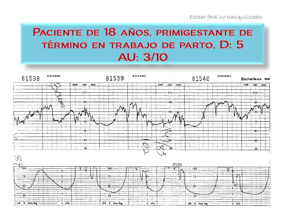 Mujeres con inducción          del TdeP, sin         enfermedades,         enfermedades     Desenlace: FSpO2, sin       im...