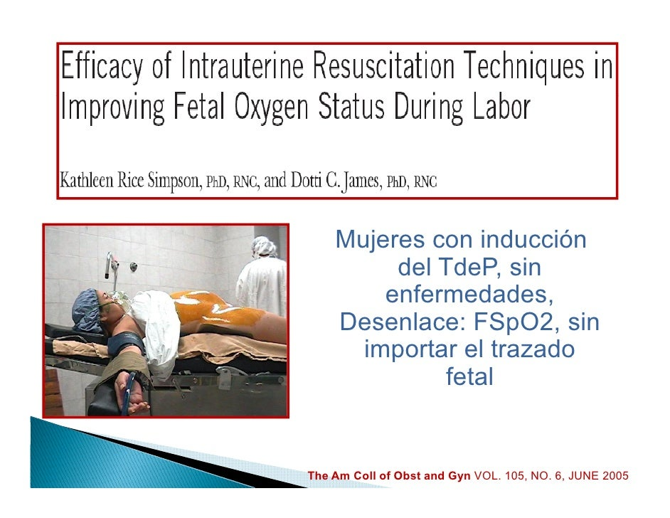 """Estado fetal no tranquilizador                 MANEJO            ANESTÉSICO Más del 85% de las cesáreas de """"emergencia"""" se..."""