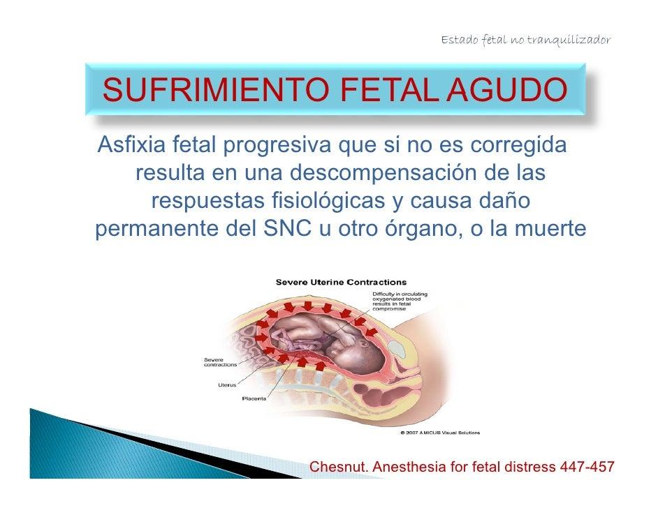 Estado fetal no tranquilizador                ASFIXIA FETAL  Condición donde el compromiso en el intercambio  sangre/gas l...