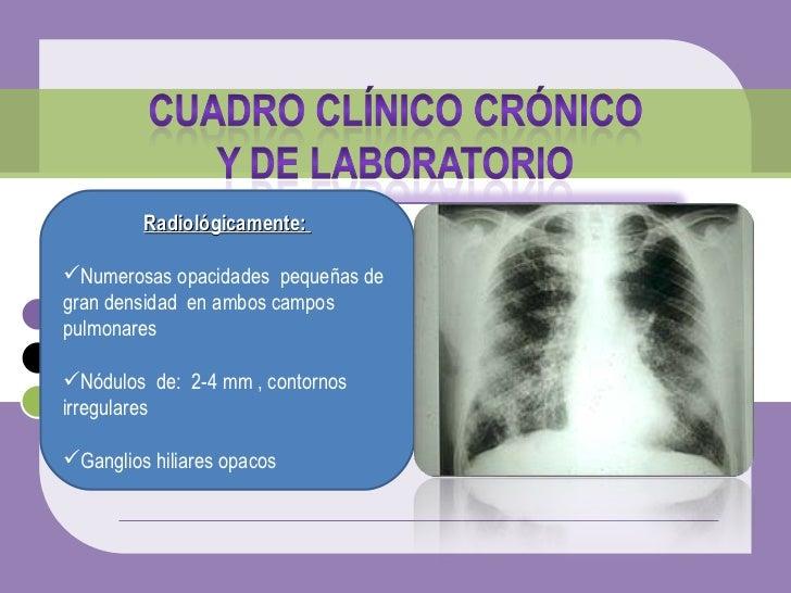 <ul><li>Radiológicamente:  </li></ul><ul><li>Numerosas opacidades  pequeñas de gran densidad  en ambos campos pulmonares  ...
