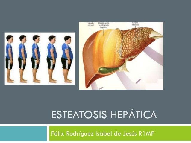 ESTEATOSIS HEPÁTICAFélix Rodríguez Isabel de Jesús R1MF