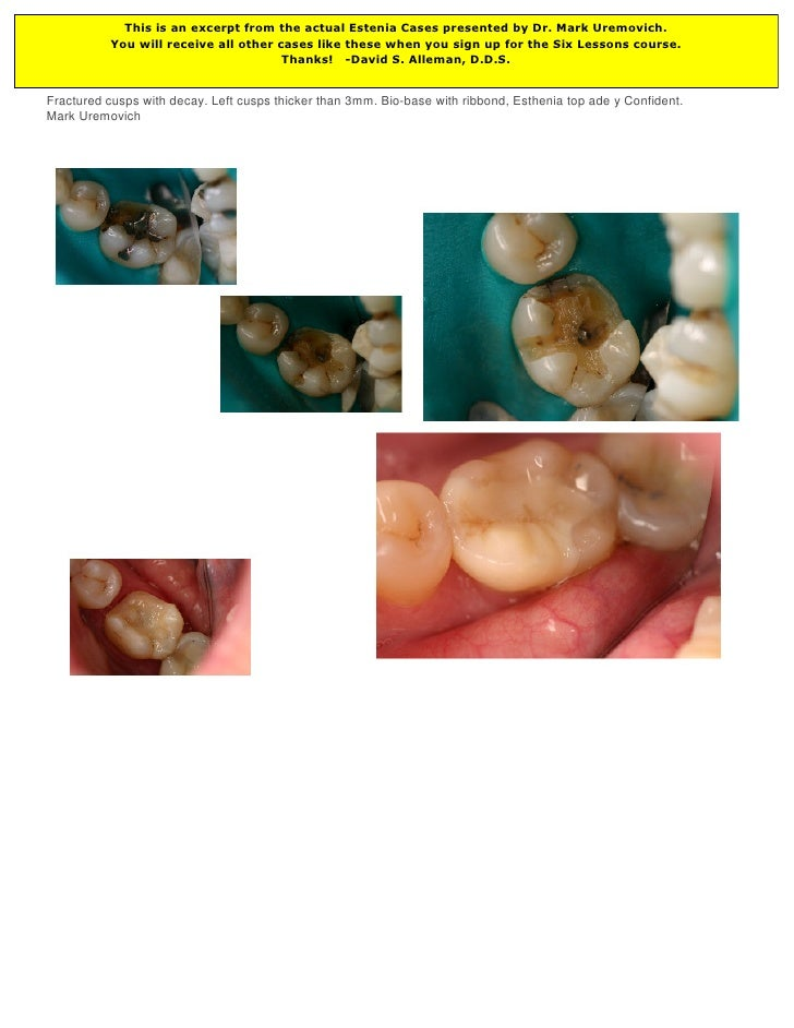 This is an excerpt from the actual Estenia Cases presented by Dr. Mark Uremovich.           You will receive all other cas...