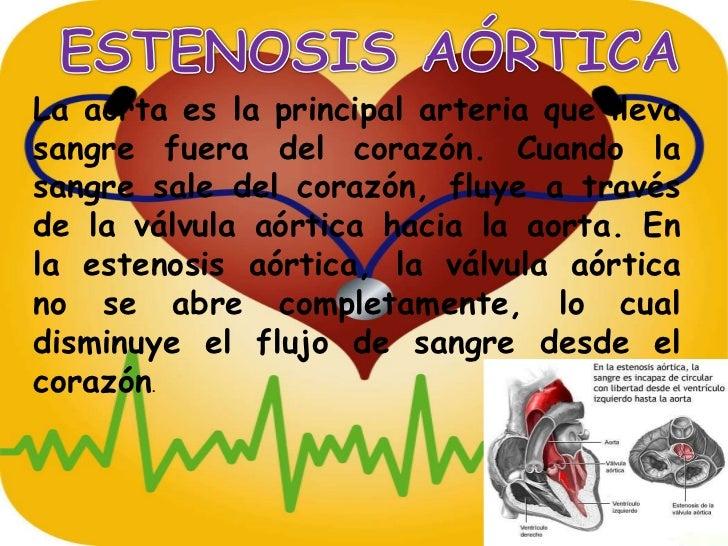 ESTENOSIS AÓRTICA<br />La aorta es la principal arteria que lleva sangre fuera del corazón. Cuando la sangre sale del cora...