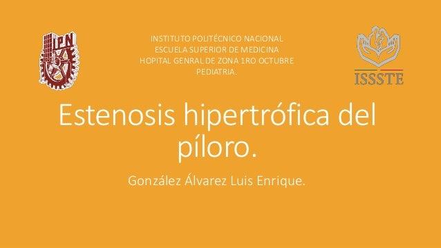 Estenosis hipertrófica del píloro. González Álvarez Luis Enrique. INSTITUTO POLITÉCNICO NACIONAL ESCUELA SUPERIOR DE MEDIC...